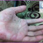 Global Dermatology » Skin diseases related to housework