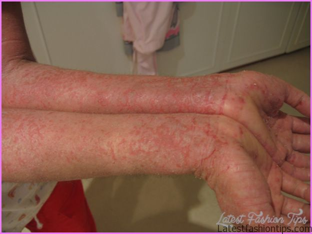 Eczema on both arms and hands. Author: Jambula http://en.wikipedia.org ...