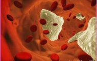 How does endothelial dysfunction affect heart failure?_11.jpg
