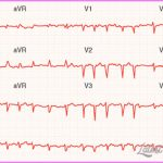 What are the genetic transmission patterns of familial dilated cardiomyopathy?_1.jpg