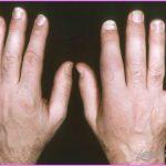 Arthritis _10.jpg
