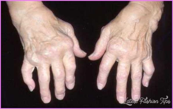 Arthritis _13.jpg