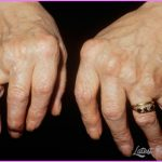 Arthritis _14.jpg