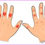 Arthritis _2.jpg
