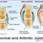 Arthritis _20.jpg