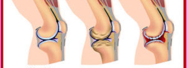 Arthritis _24.jpg