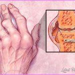 Arthritis _25.jpg
