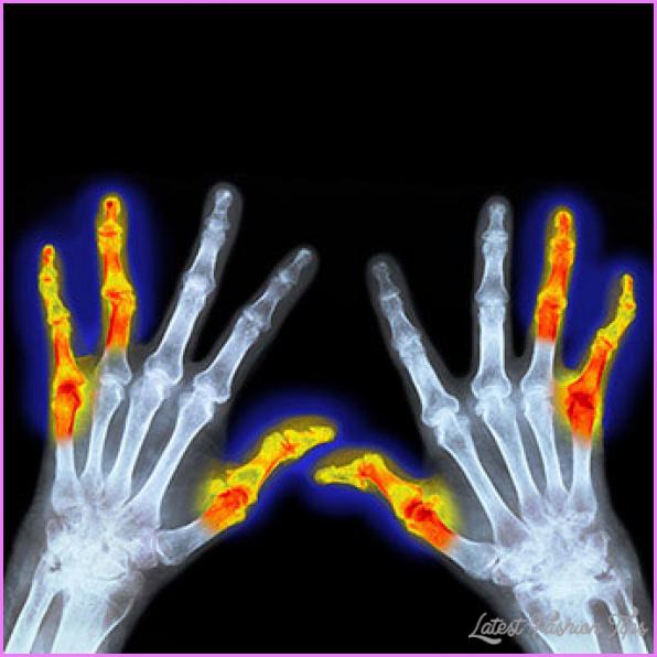 Arthritis _27.jpg