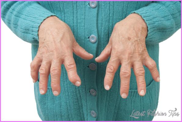 Arthritis _3.jpg