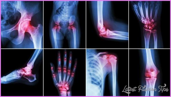 Arthritis _4.jpg