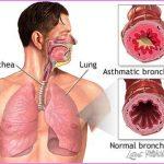 Asthma _11.jpg