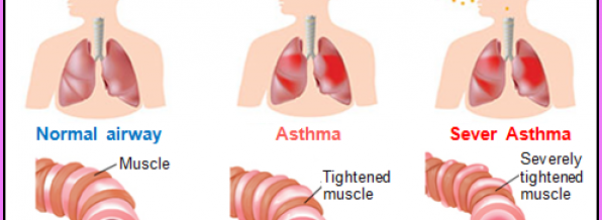 Asthma _16.jpg