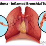 Asthma _19.jpg