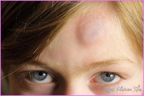 Bruises/Bumps_6.jpg