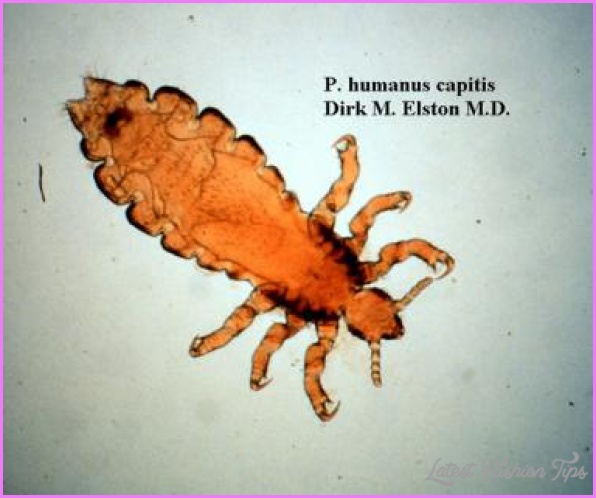 Lice (Pediculosis)_14.jpg