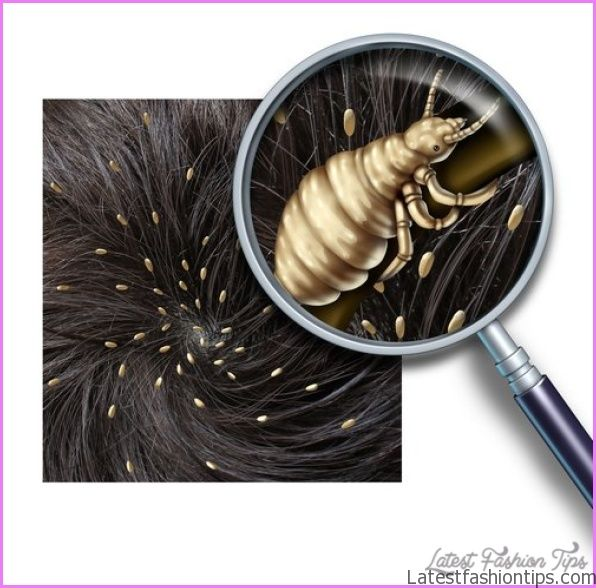 Lice (Pediculosis)_25.jpg