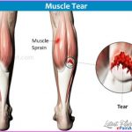 Muscular Aches and Pains _29.jpg