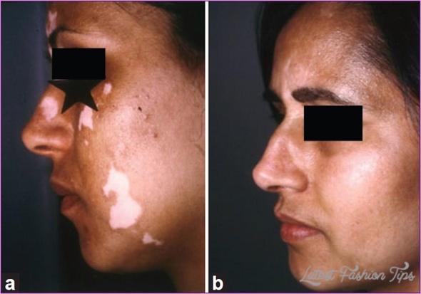 New Treatments For Vitiligo_1.jpg
