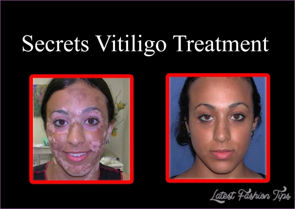 New Treatments For Vitiligo_12.jpg
