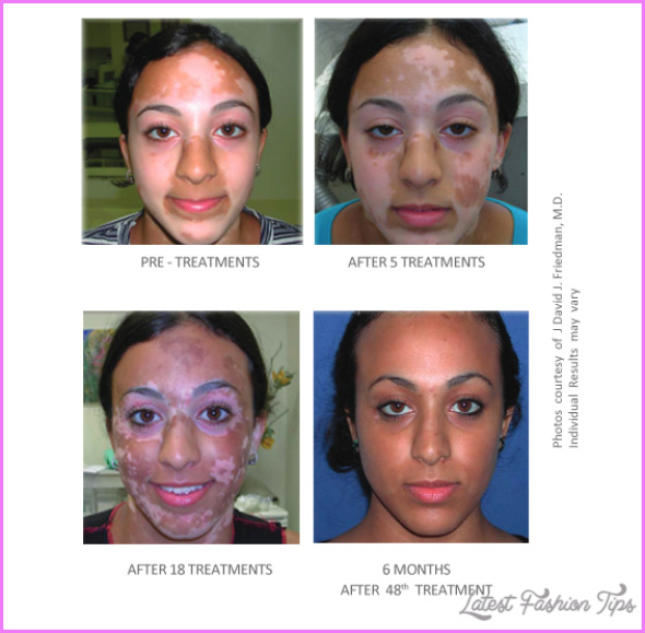 New Treatments For Vitiligo_14.jpg