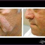 New Treatments For Vitiligo_2.jpg