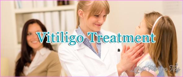New Treatments For Vitiligo_7.jpg