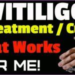 New Treatments For Vitiligo_9.jpg