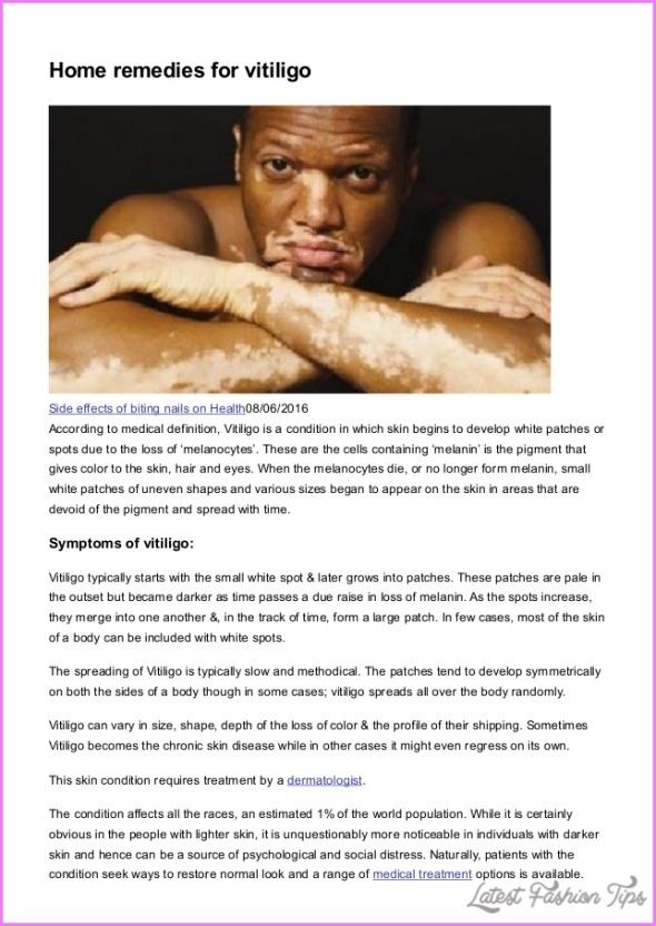 Vitiligo Home Treatment_10.jpg