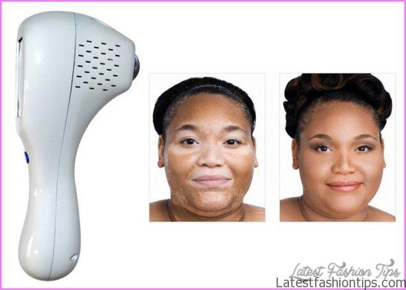 Vitiligo Home Treatment_14.jpg