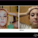 Vitiligo Home Treatment_7.jpg