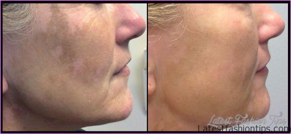 Vitiligo Light Treatment_0.jpg