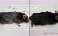 Vitiligo New Treatment_10.jpg