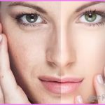 Your Laser Skin Care_7.jpg