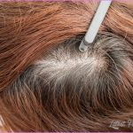 170124-hairthinning-stock.jpg