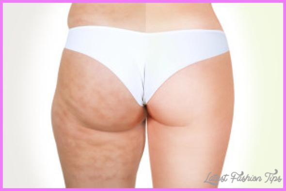 best-way-to-get-rid-of-cellulite-300x199.jpg