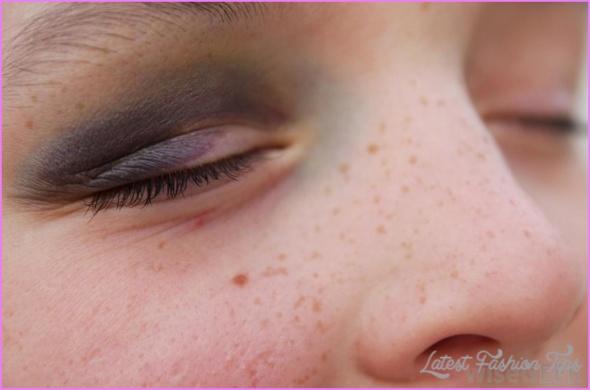 bruised-eyelid-on-woman.jpg