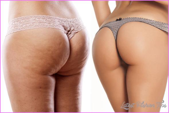cellulite-buttocks.jpeg