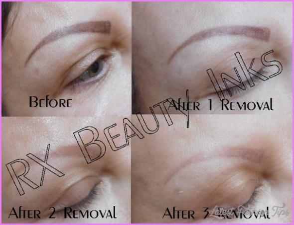 Eyebrow_tattoo_removal_permanent_makeup-600x460.jpg