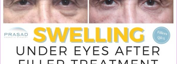 How Does Under-Eye Bruising and Swelling Happen?_0.jpg