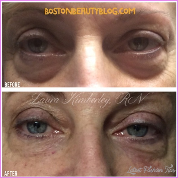 How Does Under-Eye Bruising and Swelling Happen?_1.jpg