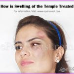 how-is-swelling-of-the-temple-treated.jpg