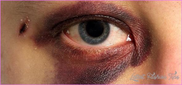 make-black-eyes-bruises-hickeys-fade-heal-faster-5-different-ways.1280x600.jpg