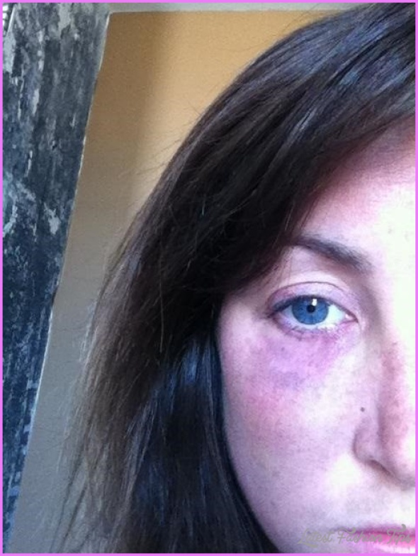 make-black-eyes-bruises-hickeys-fade-heal-faster-5-different-ways.w1456.jpg