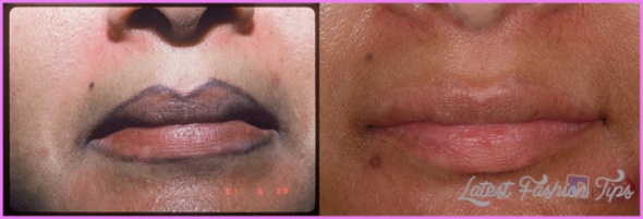 Tattoo-Removal-permanent-makeup-removal_1.jpg
