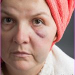 woman-wearing-red-towel-on-head-with-puffy-eyes.jpg