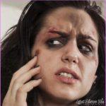 woman-with-bruised-eyes.jpg