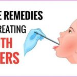 Best-Home-Remedies-For-Mouth-Ulcers.jpg