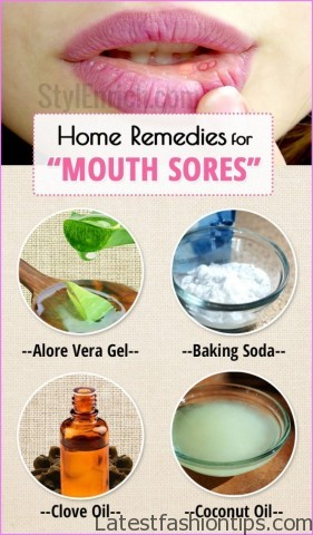 Home-Remedies-for-Mouth-Sores-stylenrich.jpg?resize=760%2C1299&ssl=1