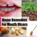 home-remedies-for-mouth-ulcers.jpg