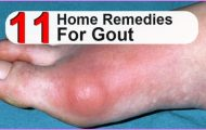 Home Remedies to Gout_0.jpg
